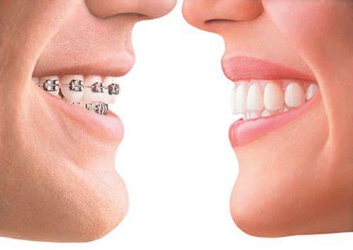 Chữa răng hô bằng công nghệ 3D Speed: Rút ngắn thời gian 3 - 6 tháng 4