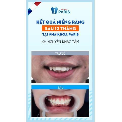 Khách hàng Nguyễn Khắc Tâm niềng 2 răng cửa với công nghệ 3D Speed