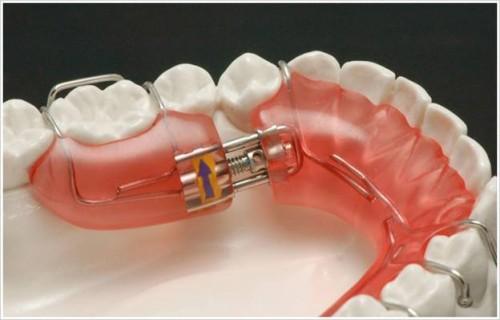 Hàm chỉnh nha tháo lắp Bảo Đảm hàm răng ĐỀU & ĐẸP tự nhiên 1