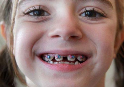 Dấu hiệu răng mọc lệch ở trẻ em & cách điều trị Đơn Giản Hiệu Quả 3