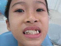 Dấu hiệu răng mọc lệch ở trẻ em & cách điều trị Đơn Giản Hiệu Quả 1
