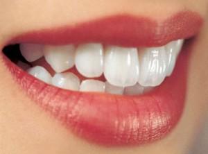 Các kiểu răng cửa to, hô, dài và thưa | Cách chỉnh sửa hiệu quả nhất 2