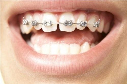 Niềng răng vẩu và những vấn đề quan trọng nhiều người quan tâm 1