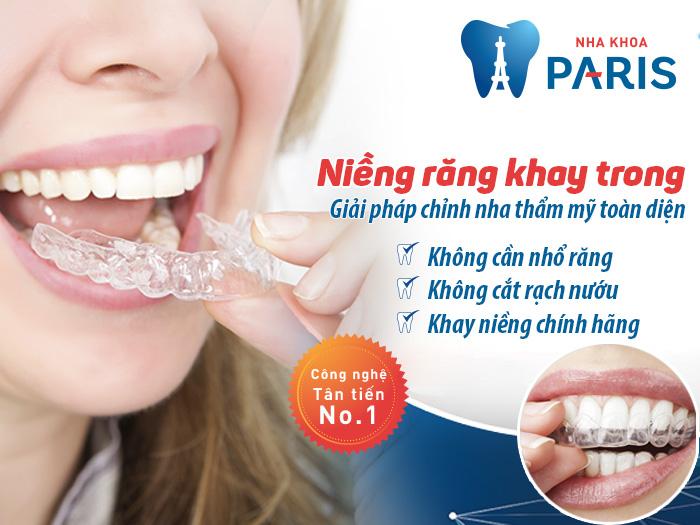 Niềng răng ở đâu tốt uy tín an toàn HÀNG ĐẦU - NK PARIS 2