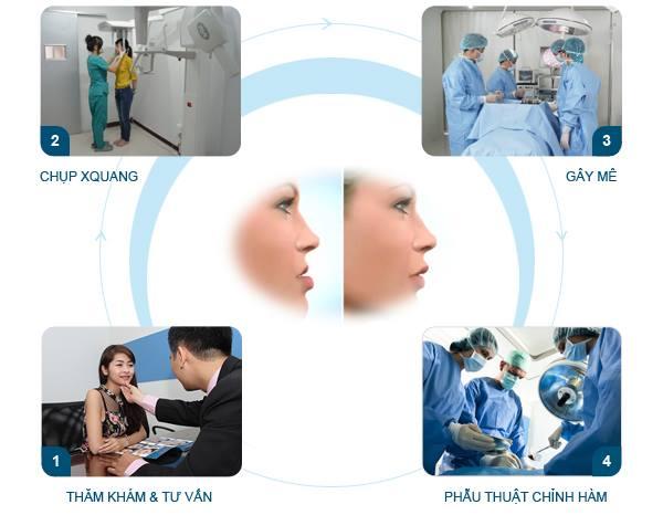 Quy trình phẫu thuật hàm móm chuẩn quốc tế