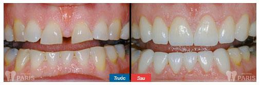Cách làm răng thưa khít lại tại nhà 5