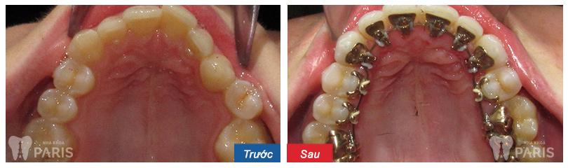 Ưu nhược điểm của niềng răng mặt trong là gì? niềng răng ở đâu? 3