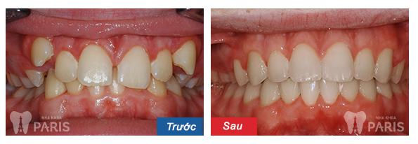 Niềng răng khểnh mất bao lâu - phương pháp nào tốt nhất 3
