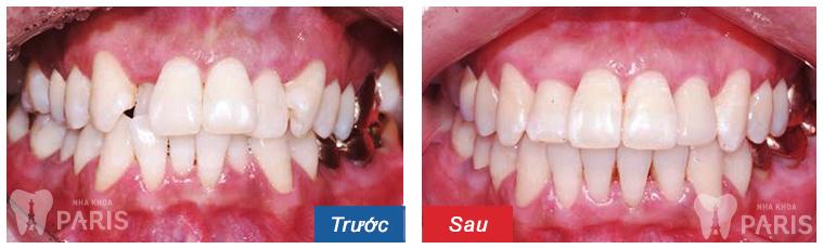Trước & sau niềng răng