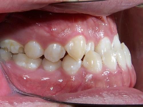 hàm răng dưới chìa ra ngoài