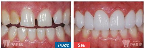 Chỉnh răng thưa mất bao nhiêu tiền Trám răng, Bọc sứ & Niềng răng? 2