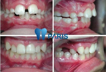 Chỉnh răng thưa mất bao nhiêu tiền Trám răng, Bọc sứ & Niềng răng? 3