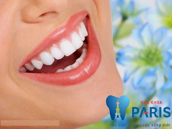 Địa chỉ niềng răng thẩm mỹ ở Hà Nội CHUYÊN NGHIỆP, UY TÍN 1