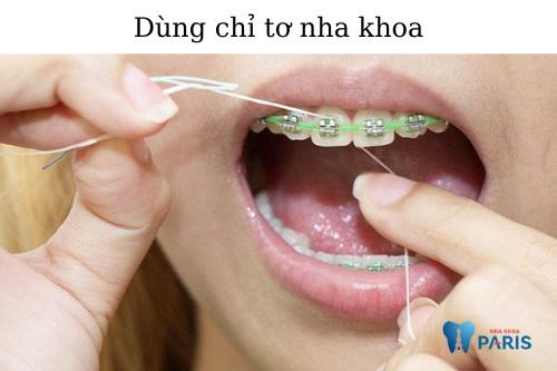 Chăm sóc răng miệng khi niềng răng