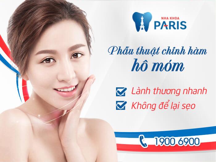 【Chia Sẻ】Địa chỉ phẫu thuật hàm hô ở Hà Nội Uy Tín, tốt nhất 2017 4