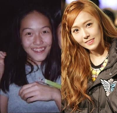 những hình ảnh trước và sau khi niềng răng