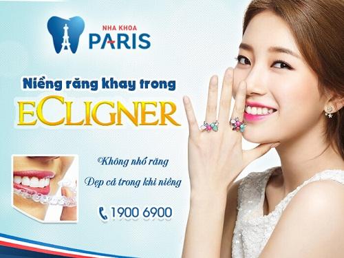 Niềng răng giá bao nhiêu tại Vinh – Nghệ An? 3