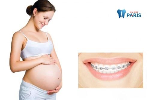 Niềng răng bao lâu thì nên có bầu 1