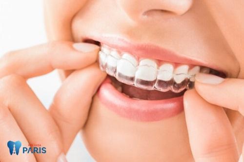 niềng răng bao lâu thì nên có bầu 2