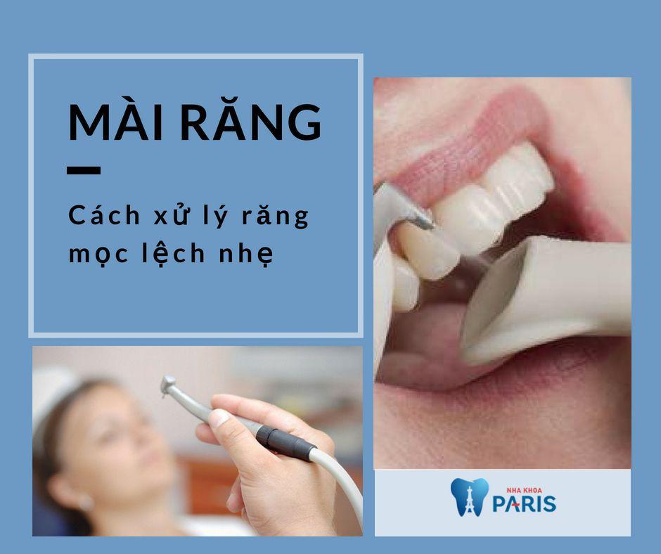 """Chi tiết 3 cách xử lý răng mọc lệch giúp răng """"ĐỀU ĐẶN VĨNH VIỄN"""" 2"""