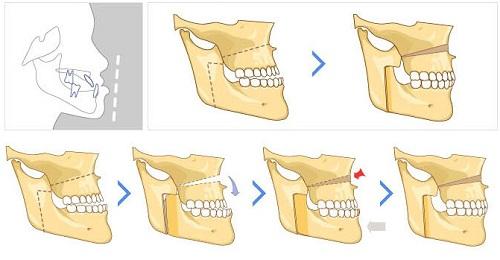 4 thông tin bạn cần biết trước khi phẫu thuật cắt hàm chữa móm 1