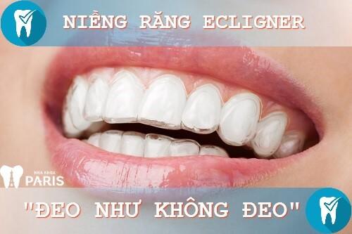 Niềng răng eCligner giá bao nhiêu? Bảng giá chuẩn 2018 1