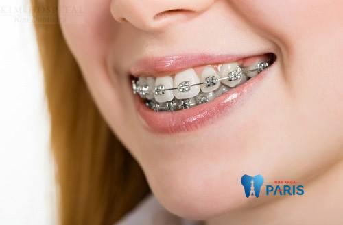 Những chú ý khi niềng răng để đạt hiệu quả tốt nhất mà ít ai biết 3