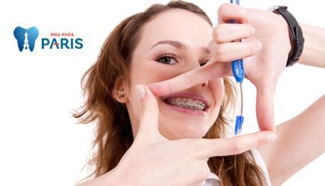 Những chú ý khi niềng răng để đạt hiệu quả tốt nhất mà ít ai biết 1
