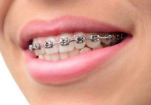 Niềng răng có hại cho sức khỏe không, ảnh hưởng gì không? 2