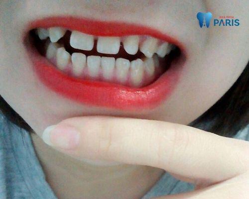 răng bị thưa phải làm sao