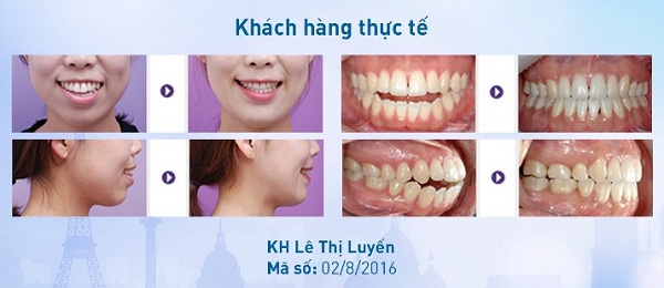niềng răng tại nhà cho người lớn