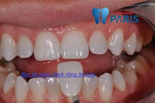"""Tham khảo phương pháp khắc phục răng hô nhẹ """"Dứt Điểm 100%"""" 4"""