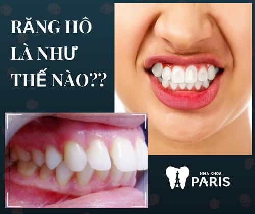 """Răng hô là như thế nào - 4 đặc điểm """"nhận dạng"""" cơ bản"""