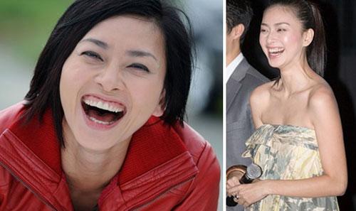Cười hở lợi là gì? Có ảnh hưởng gì đến cuộc sống hay không? 3