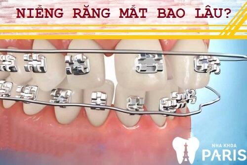 Đeo niềng răng mất bao lâu mang lại hiệu quả tối ưu VĨNH VIỄN 1