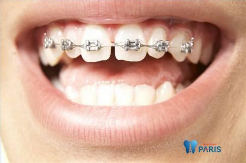 Top 3 cách chỉnh răng bị thưa đơn giản Hiệu Quả nhất 4