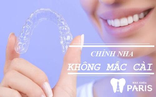 Niềng răng Invisalign giá bao nhiêu tiền thì thường khá cao do phải sử dụng rất nhiều khay niềng.