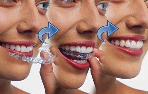 Chỉnh nha không mắc cài - Giải pháp căn chỉnh răng CHUẨN ĐỀU ĐẸP 8