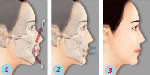 Hàm trên hơi hô – Nguyên nhân và cách điều trị triệt để nhất 3