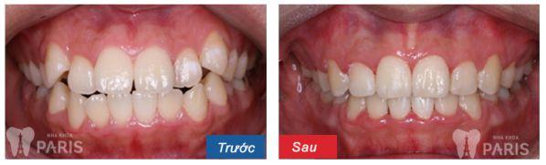 Dấu hiệu nhận biết khi nào cần niềng răng thì mới TỐT NHẤT 2