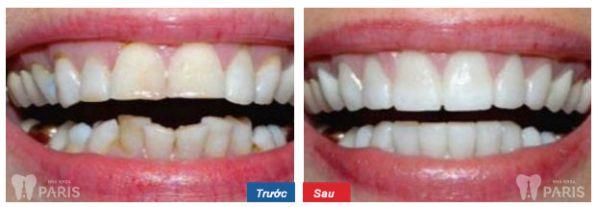 Dấu hiệu nhận biết khi nào cần niềng răng thì mới TỐT NHẤT 8
