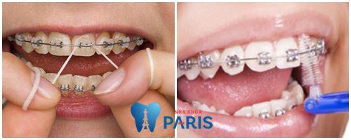 Niềng răng bị tụt lợi -Nguyên nhân và cách khắc phục TỨC THÌ 3