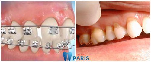 Niềng răng bị tụt lợi -Nguyên nhân và cách khắc phục TỨC THÌ 1