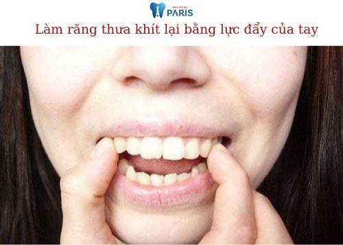 Cách làm răng thưa khít lại tại nhà 1