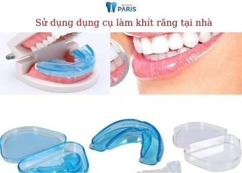Cách làm răng thưa khít lại tại nhà 3