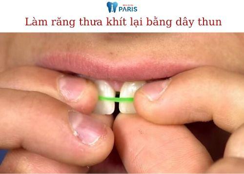 Cách làm răng thưa khít lại tại nhà 2