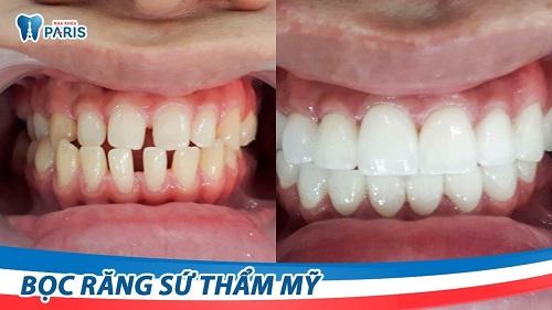 Cách làm răng thưa khít lại tại nhà 6