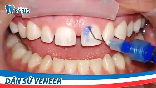 Cách làm răng thưa khít lại tại nhà 4