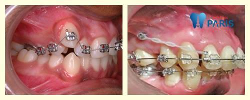 Niềng răng bị sưng lợi