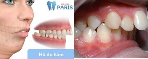 Niềng răng có hết hô không? Chi phí niềng răng bao nhiêu chuẩn nhất 1